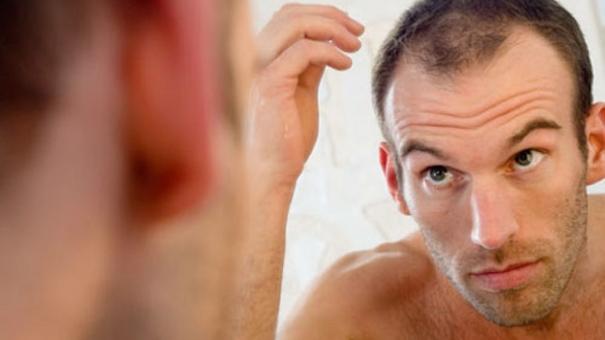Conseils pour soigner les cheveux cassants